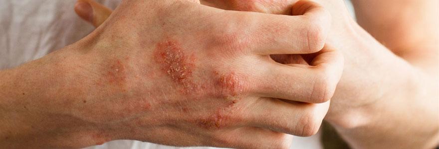 Eczema chronique de la main